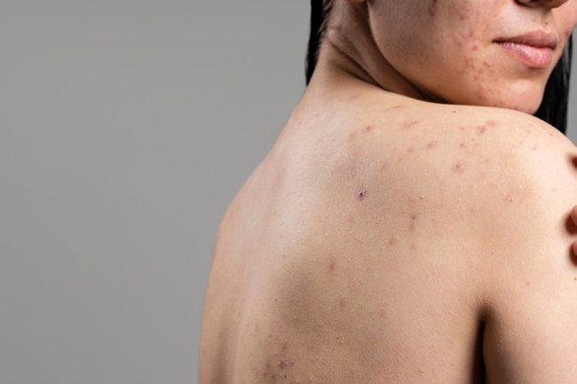 Acne scar treatment laser