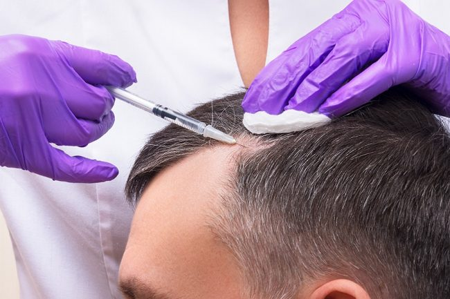Trained professional performing PRP Hair Restoration.
