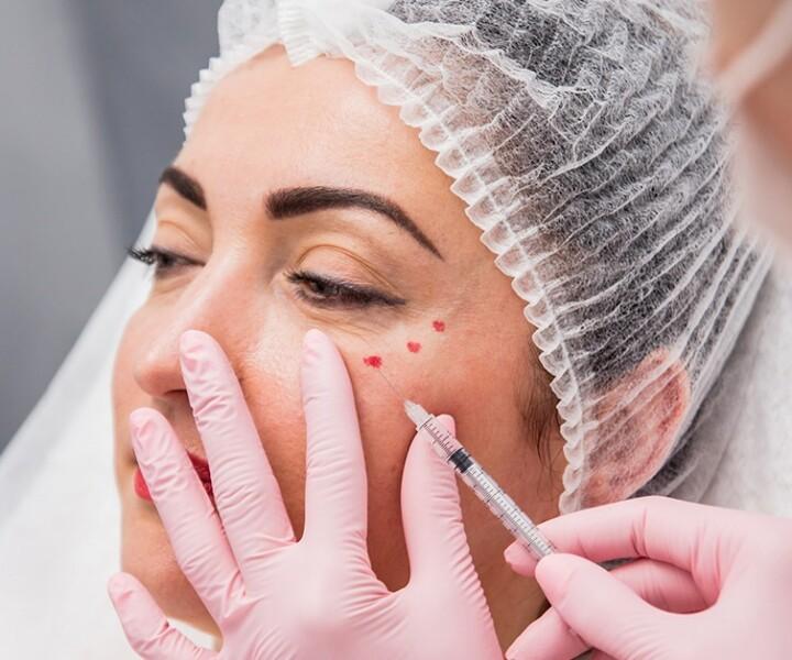 How Long Do Facial Fillers Last